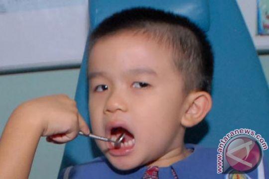 Makanan cepat saji berlebihan berpotensi rusak gigi