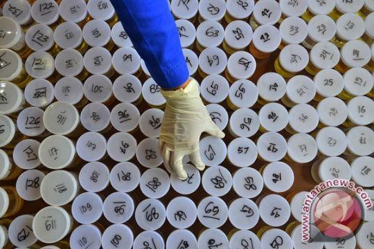 Pemeriksaan hormon di urine memudahkan diagnosis kelainan sistem reproduksi
