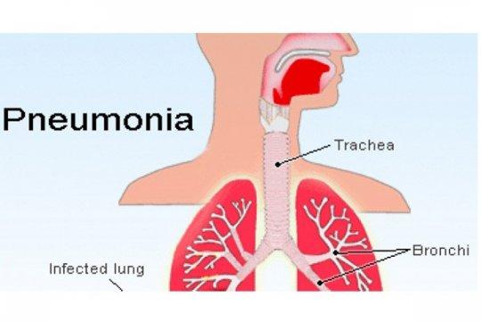 KBRI Beijing pastikan tidak ada WNI terjangkit wabah pneumonia berat