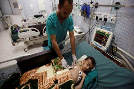 85.000 anak diduga telah meninggal akibat kelaparan di Yaman