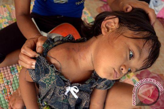 BPBD Klungkung catat 13 pengungsi Gunung Agung meninggal