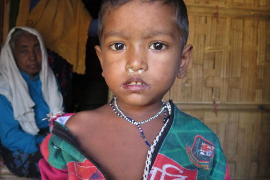 Anak-anak Rohingya kekurangan gizi di pengungsian Bangladesh