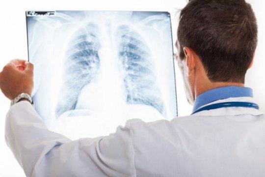 Tanya jawab kanker paru, benarkah bisa dialami orang muda?