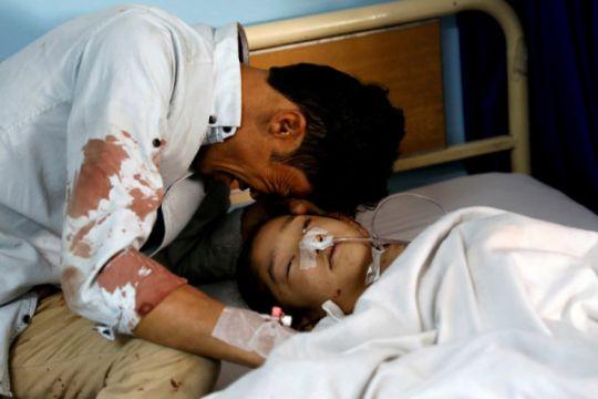 Bom bunuh diri saat pesta pernikahan di Afghanistan telan lima korban