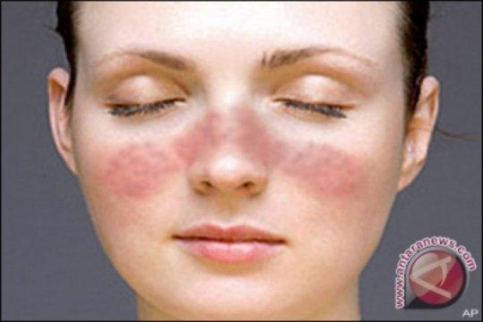 Lupus sulit didiagnosis tapi bisa dideteksi lewat SALURI
