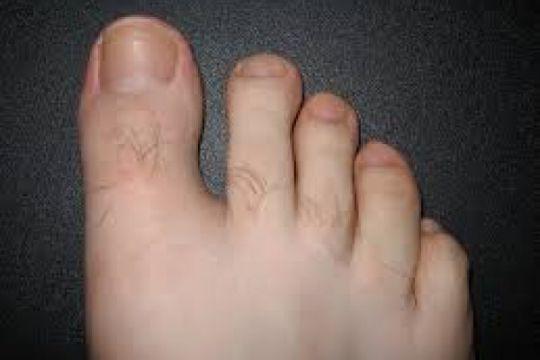 Cara obati kuku kaki yang menguning