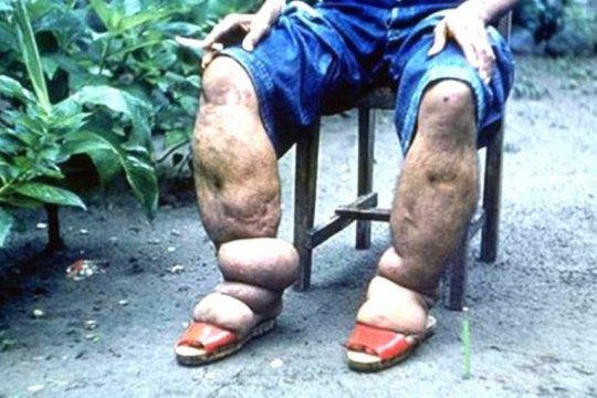 Memberantas penyakit kaki gajah