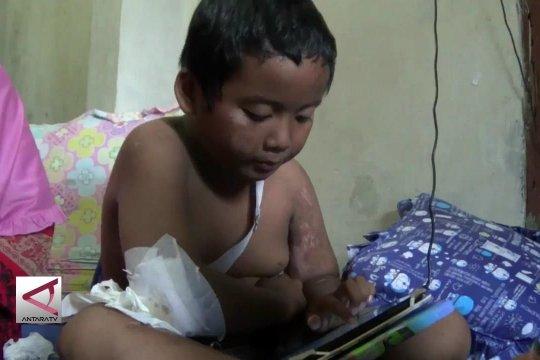 Pemerintah tanggung tunggakan biaya RS korban Tsunami