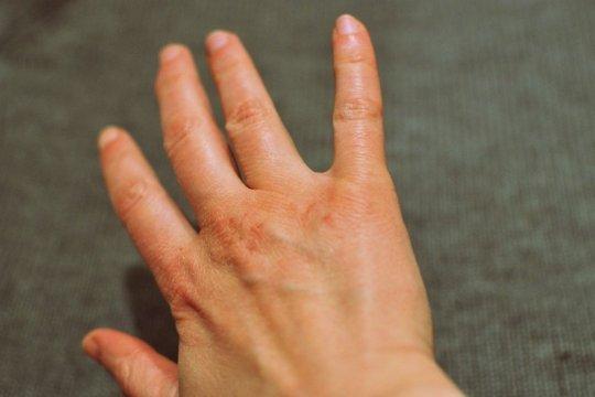 Kenali tanda-tanda metabolisme tubuh lambat