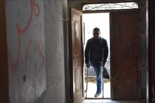 Ayah lima anak di Suriah bertahan hidup meski kehilangan kakinya