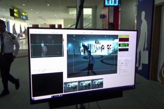 Antisipasi cacar monyet, Bandara Kualanamu gandeng RS