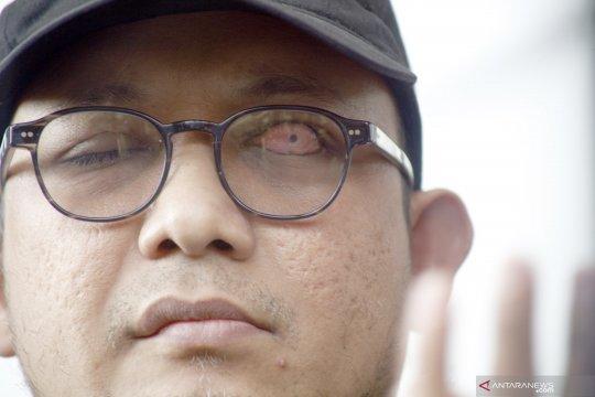 Penyidik KPK Novel Baswedan positif COVID-19