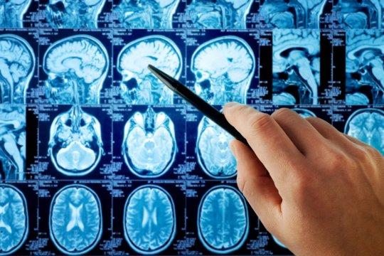 Perlukah deteksi kanker di laboratorium dilakukan secara mandiri?