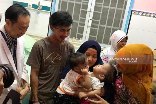 RSUD Soetomo siap menerima kembali tiga bayi kembar siam