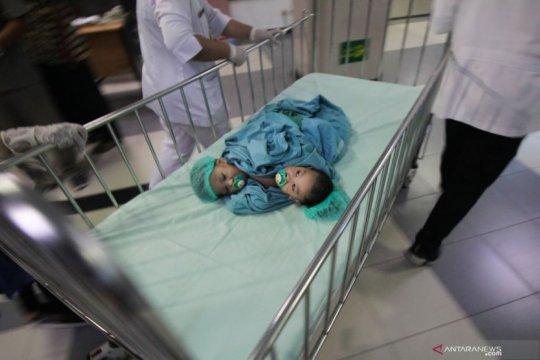 Bayi kembar siam Aqila-Azila diisolasi selama seminggu usai operasi