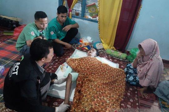 ACT NTB bantu pengobatan bocah korban kebakaran