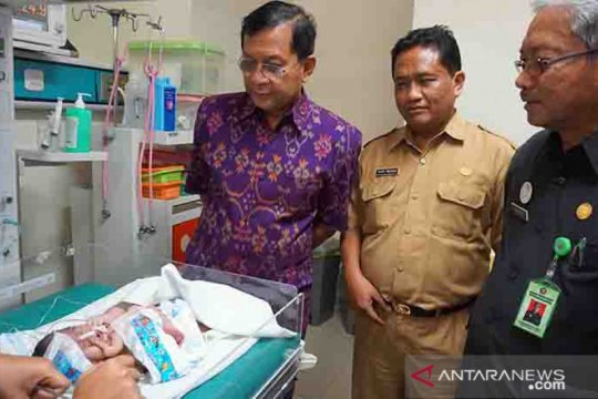 Bayi dengan banyak kelainan lahir di Buleleng