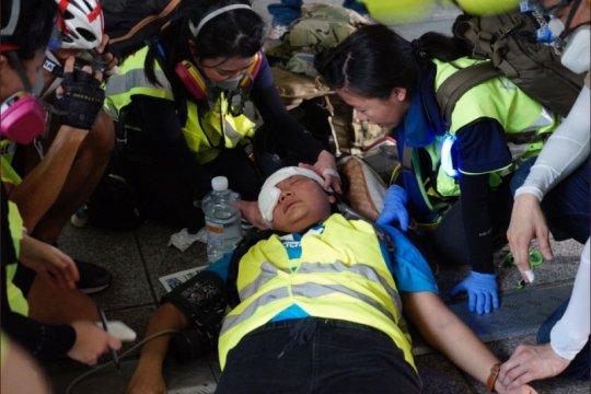 Wartawan Indonesia kena peluru karet saat liput demonstrasi Hong Kong