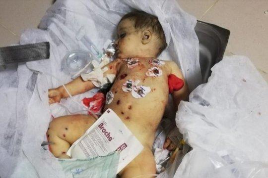 Bayi sembilan bulan korban serangan PKK/YPG