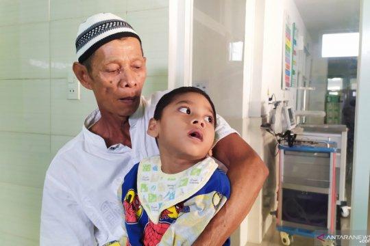 Jatuh dari ayunan, bocah Sumut menderita lumpuh otak