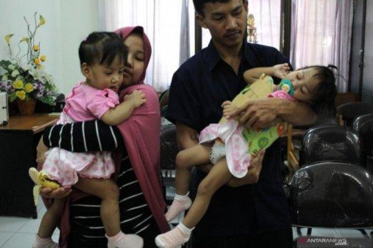 Bayi kembar siam Aqila-Azila diperbolehkan pulang ke Kendari