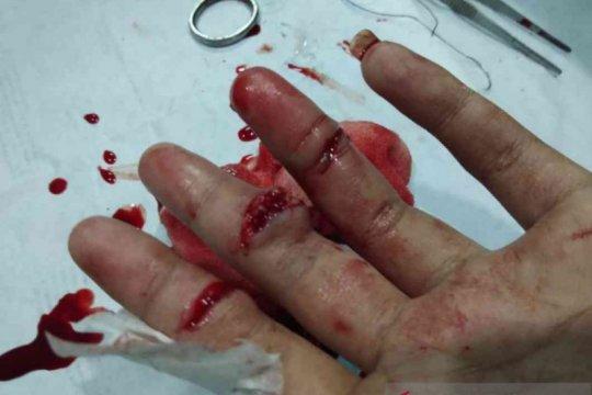 Kawanan begal di Bekasi bacok tangan Fazrin hingga nyaris putus