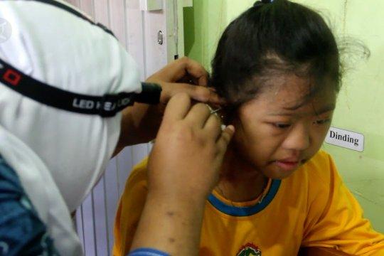 Ini anjuran dokter THT perihal membersihkan telinga