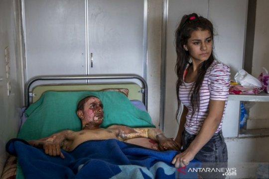Lebih dari 700 jurnalis warga tewas di Suriah