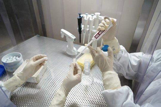 Virus SARS-CoV-2 lebih menular dibanding virus corona lain
