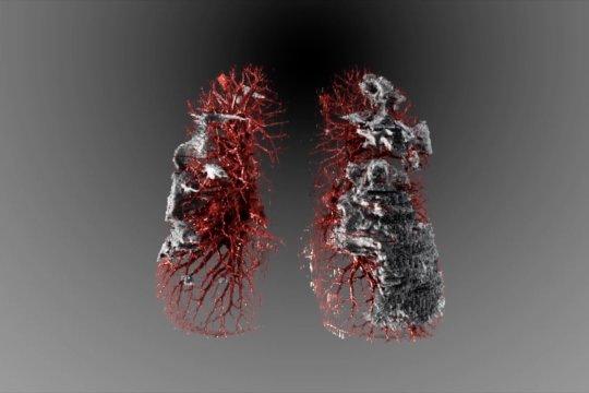 Visualisasi dampak COVID-19 terhadap paru-paru