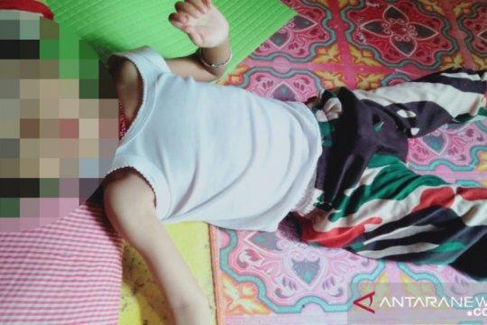 Seorang balita diduga menderita gizi buruk di Dharmasraya