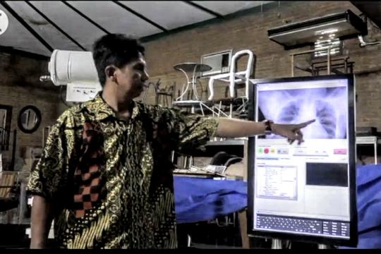 Radiografi digital dari UGM diklaim 95% akurat deteksi COVID-19