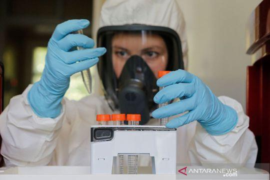 Rusia produksi vaksin COVID-19 gelombang pertama