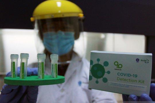 LIPI temukan alat deteksi alternatif  COVID-19