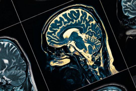 Faktor penyebab demensia, usia hingga gaya hidup