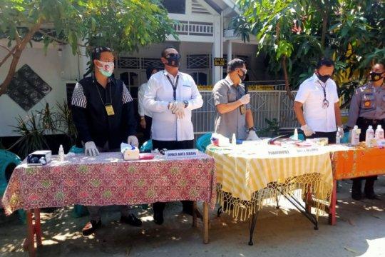 Polda Banten ungkap praktik ilegal dokter kecantikan di Kota Serang