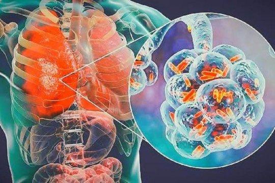 Dokter: Penderita jantung paling berisiko jika terpapar COVID-19