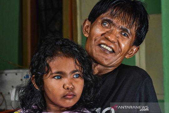 Di balik fenomena anak bermata biru Pekanbaru