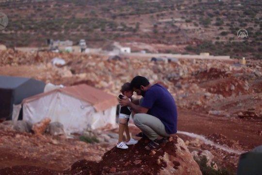 Bayi Suriah yang diamputasi kongenital kembali dari Turki dengan kaki palsu