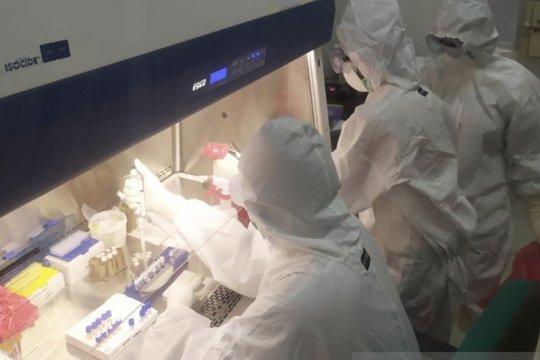 Tes COVID-19 massal di NTT mulai dilakukan pekan ini