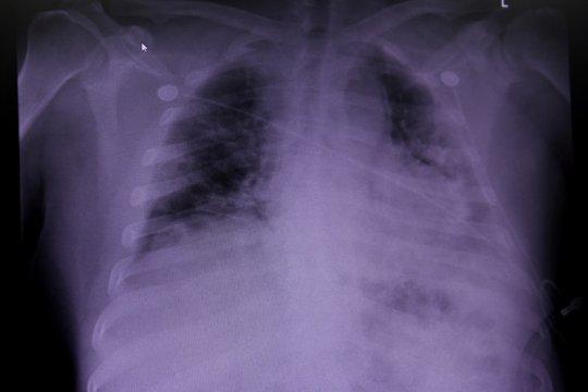 Dokter: Bedakan pneumonia karena COVID-19 atau bakteri dengan tes swab