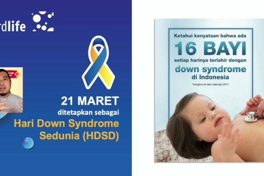 "Peringati HDSD, Cordlife gelar ""Down Syndrome Got Talent"""