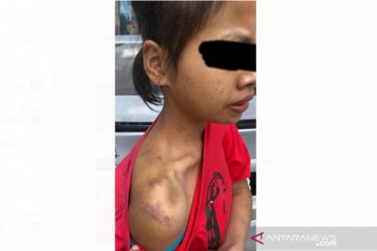 Polisi Malaysia tangkap dua orang penyiksa PRT WNI