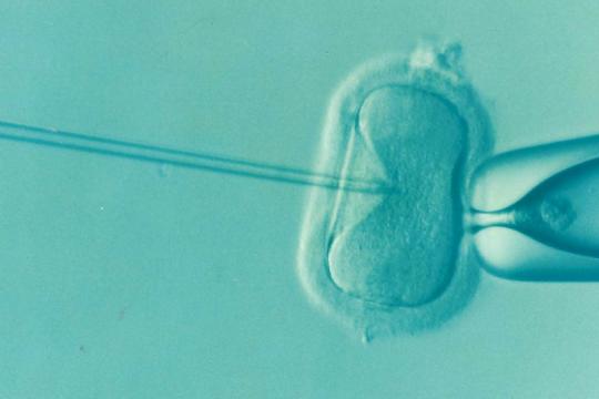 Akupuntur bermanfaat dalam program bayi tabung