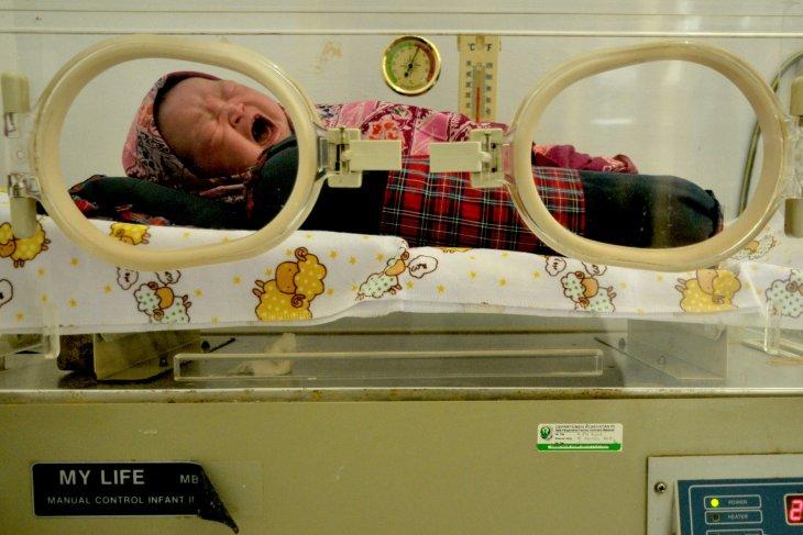 Bayi Penderita Usus Luar Tubuh Meninggal Dunia