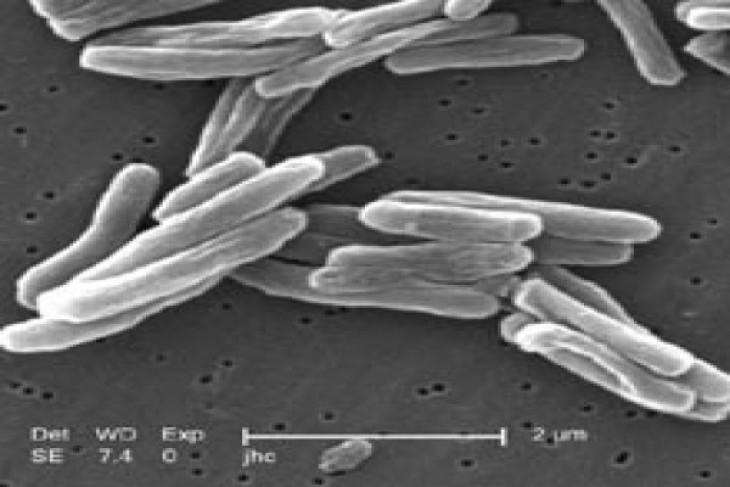 Pemkab Jayawijaya akan terbitkan perda tuberculosis