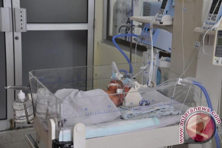Bayi kembar siam Fahira-Sahira tahap pemulihan