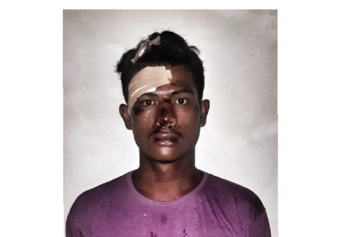 Polisi jemput dua tersangka pencurian di IGD RSUD Tulehu