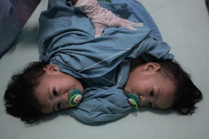 Pemisahan bayi kembar siam