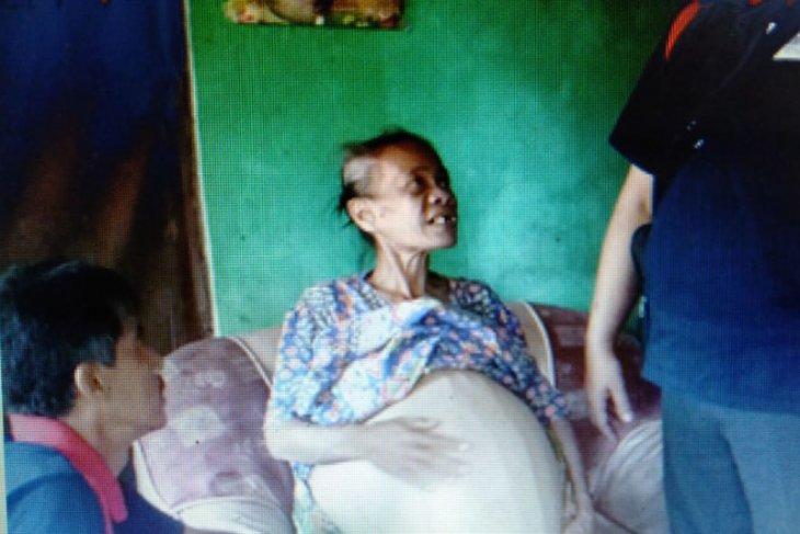 Janda miskin menderita tumor perut, F-Gerindra DPRD Pandeglang bantu pengobatan